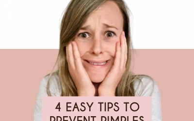 4 Easy Tips To Totally Prevent Pimples